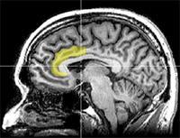 250px-MRI_anterior_cingulate